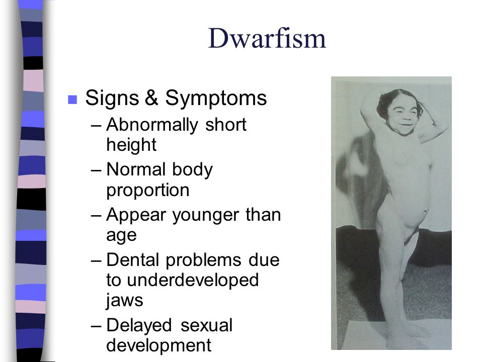 Dwarfism Signs & Symptoms Abnormally short height