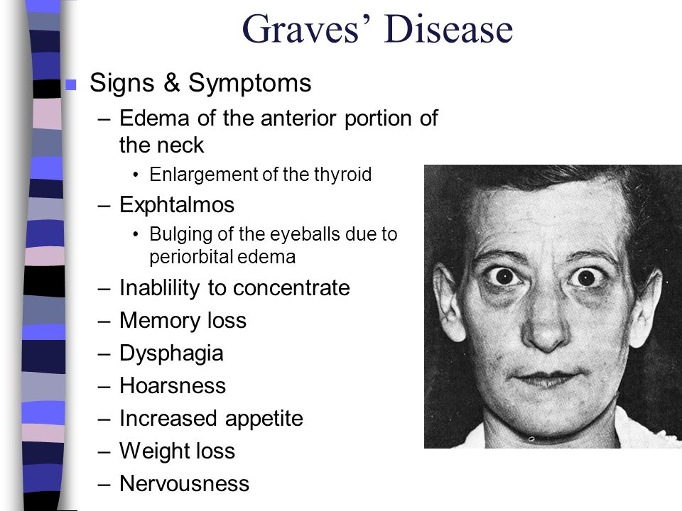 Graves' Disease Signs & Symptoms