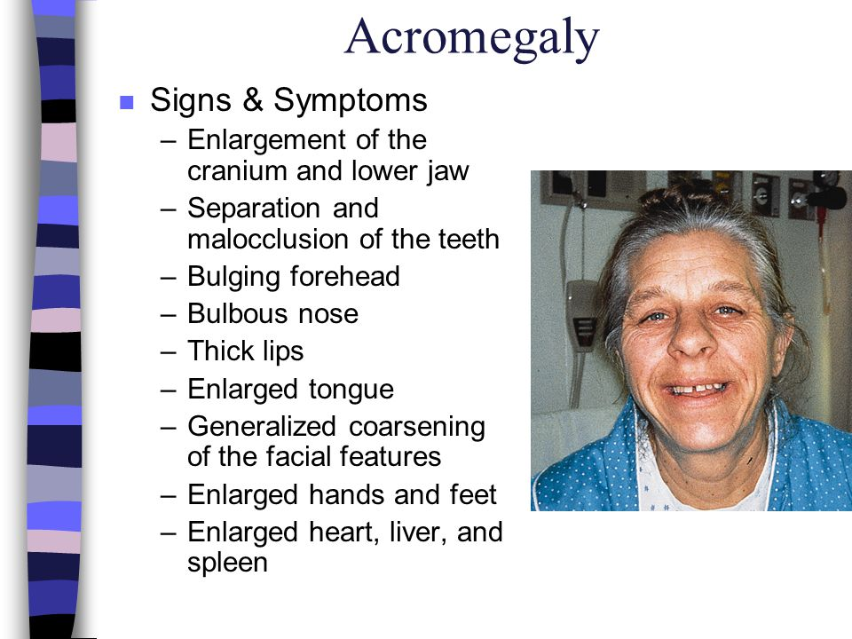 Acromegaly Signs & Symptoms Enlargement of the cranium and lower jaw