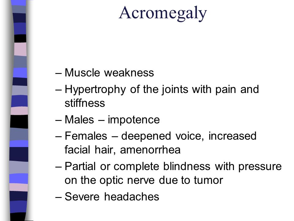Acromegaly Muscle weakness