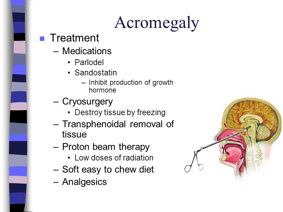 Acromegaly Treatment Medications Cryosurgery