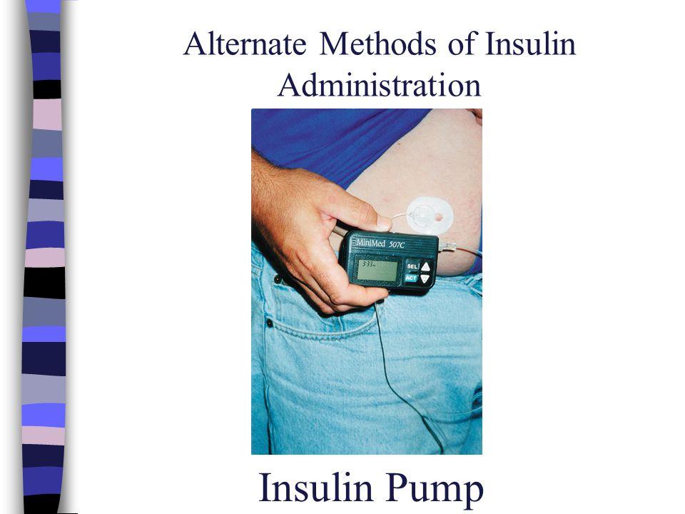 Alternate Methods of Insulin Administration