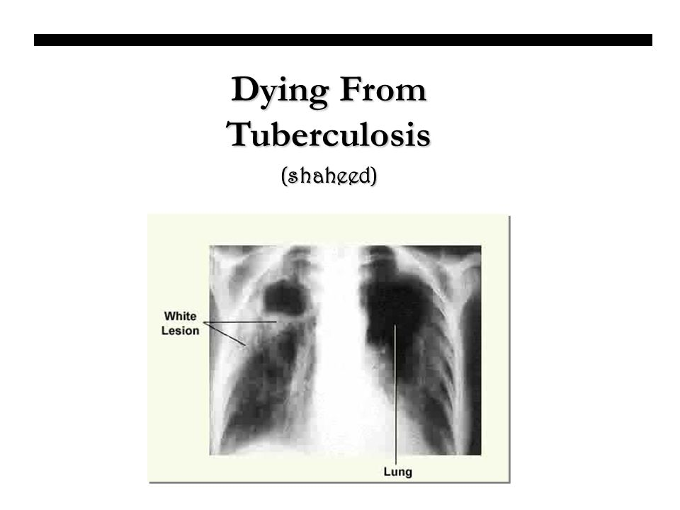 Dying From Tuberculosis