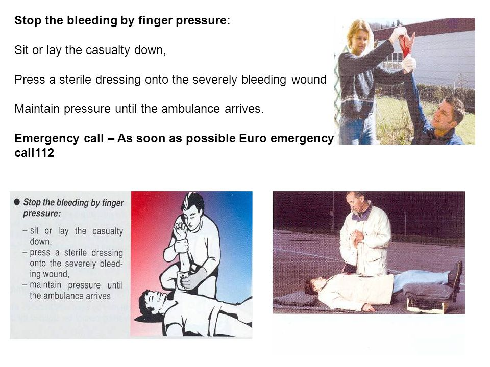 Stop the bleeding by finger pressure: