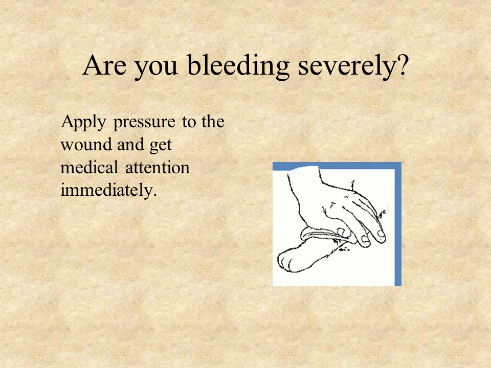 Are you bleeding severely