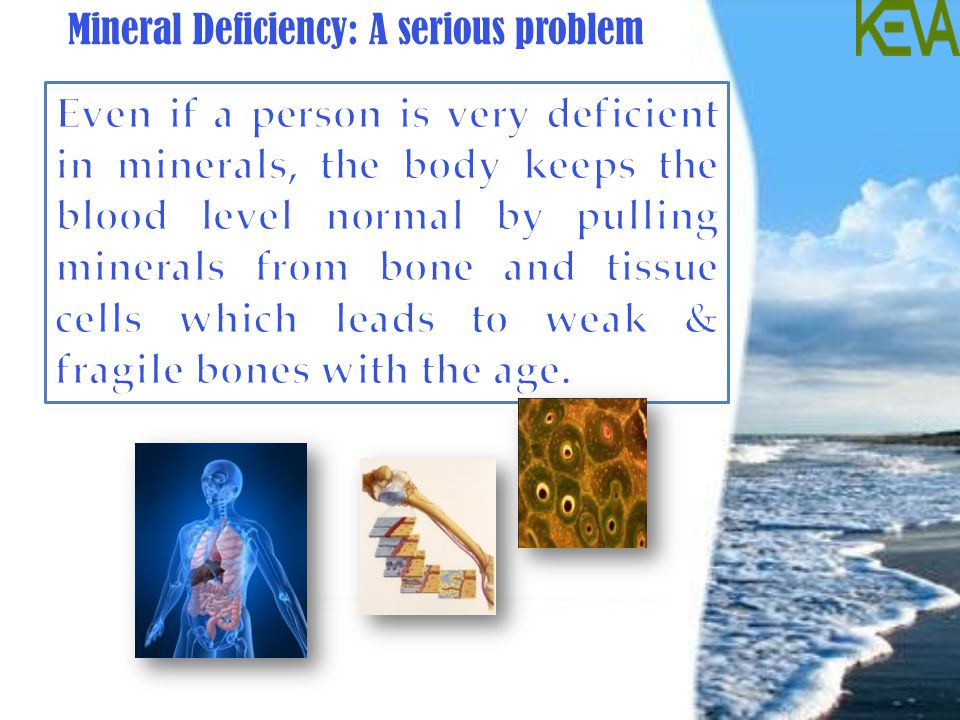 Mineral Deficiency: A serious problem