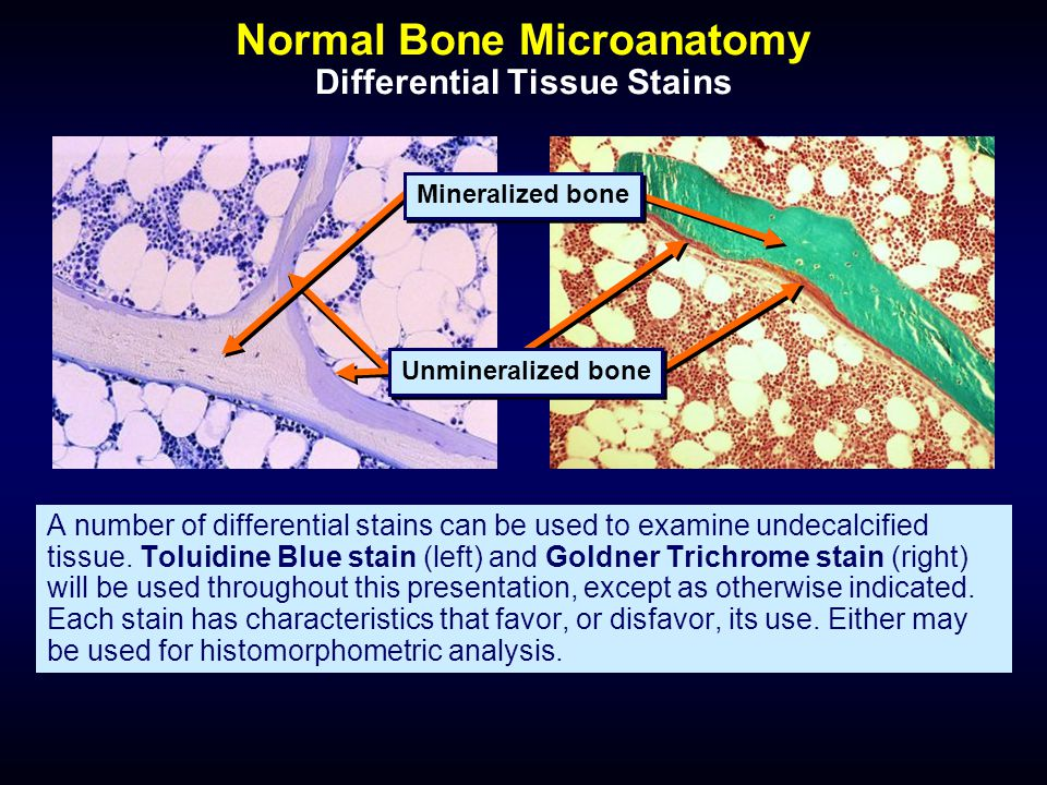 Normal Bone Microanatomy Differential Tissue Stains