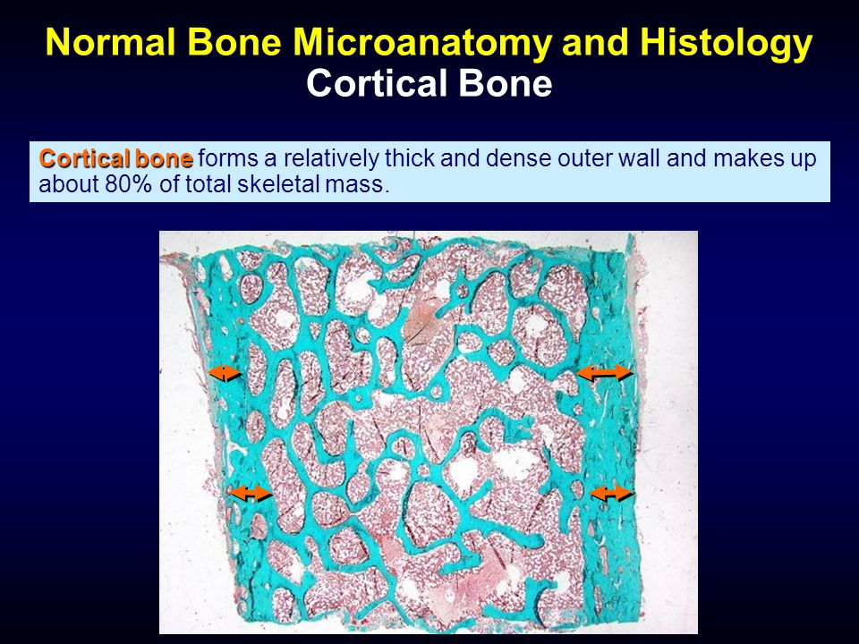 Normal Bone Microanatomy and Histology Cortical Bone