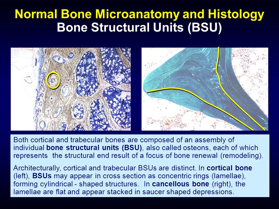 Normal Bone Microanatomy and Histology Bone Structural Units (BSU)