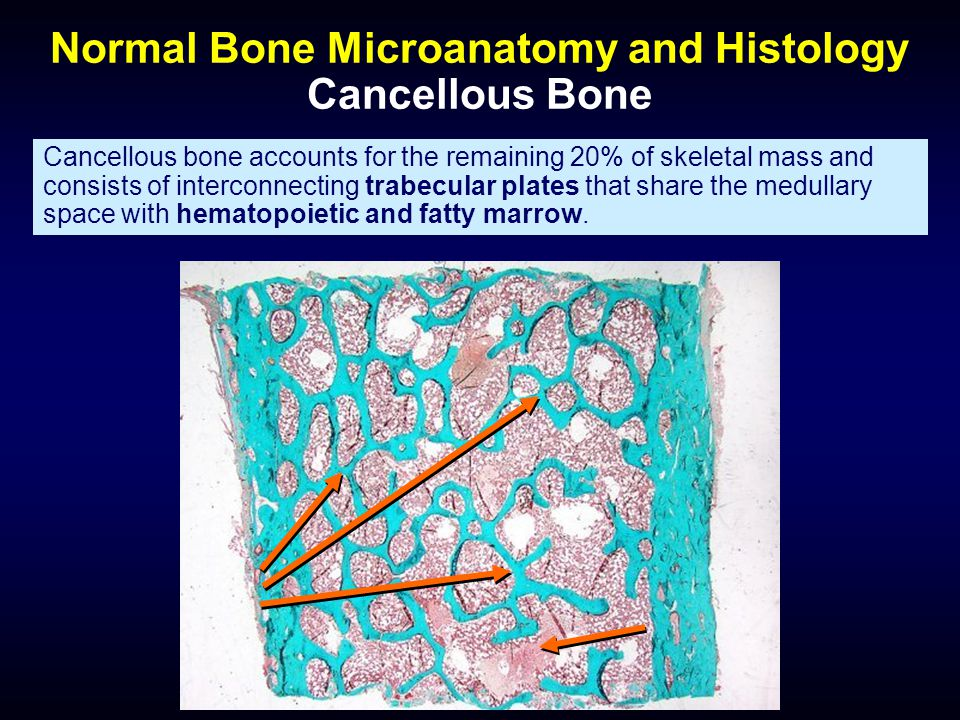 Normal Bone Microanatomy and Histology Cancellous Bone