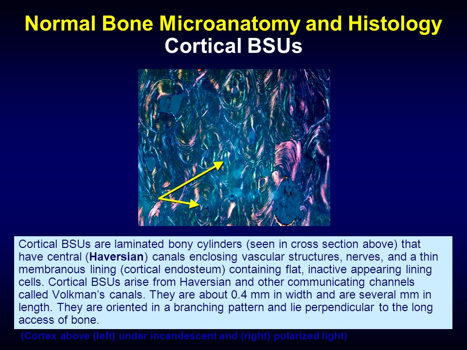 Normal Bone Microanatomy and Histology Cortical BSUs