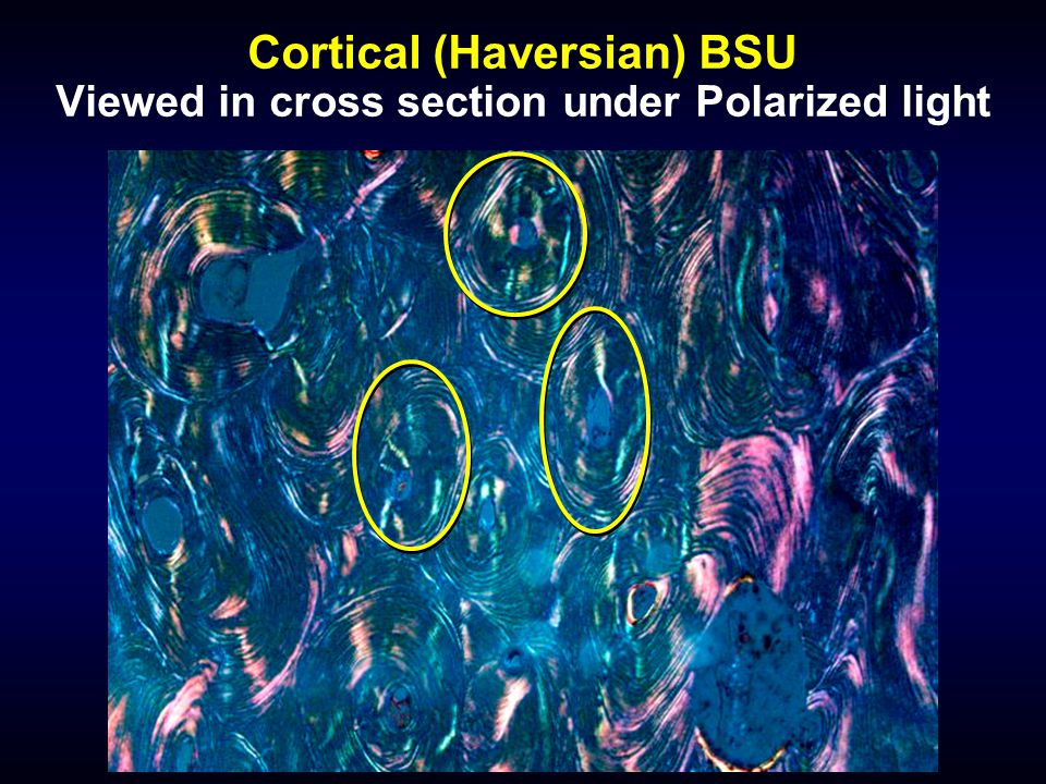 Cortical (Haversian) BSU Viewed in cross section under Polarized light