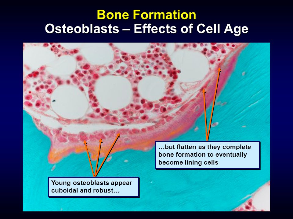 Bone Formation Osteoblasts – Effects of Cell Age