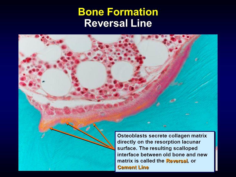 Bone Formation Reversal Line