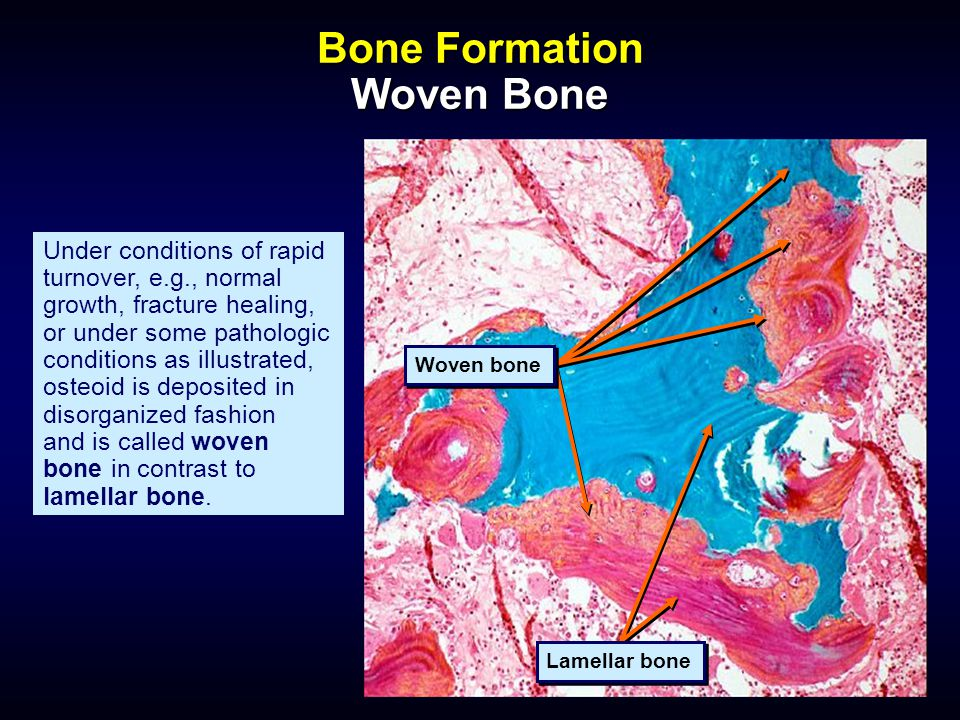 Bone Histology and Histopathology for Clinicians A Primer ...