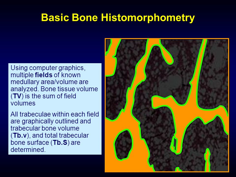 Basic Bone Histomorphometry