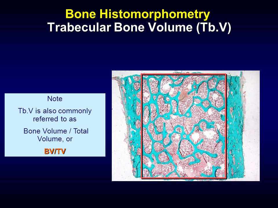 Bone Histomorphometry Trabecular Bone Volume (Tb.V)