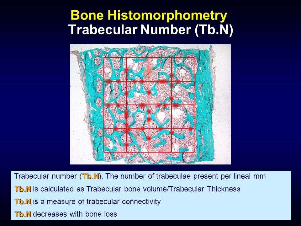 Bone Histomorphometry Trabecular Number (Tb.N)