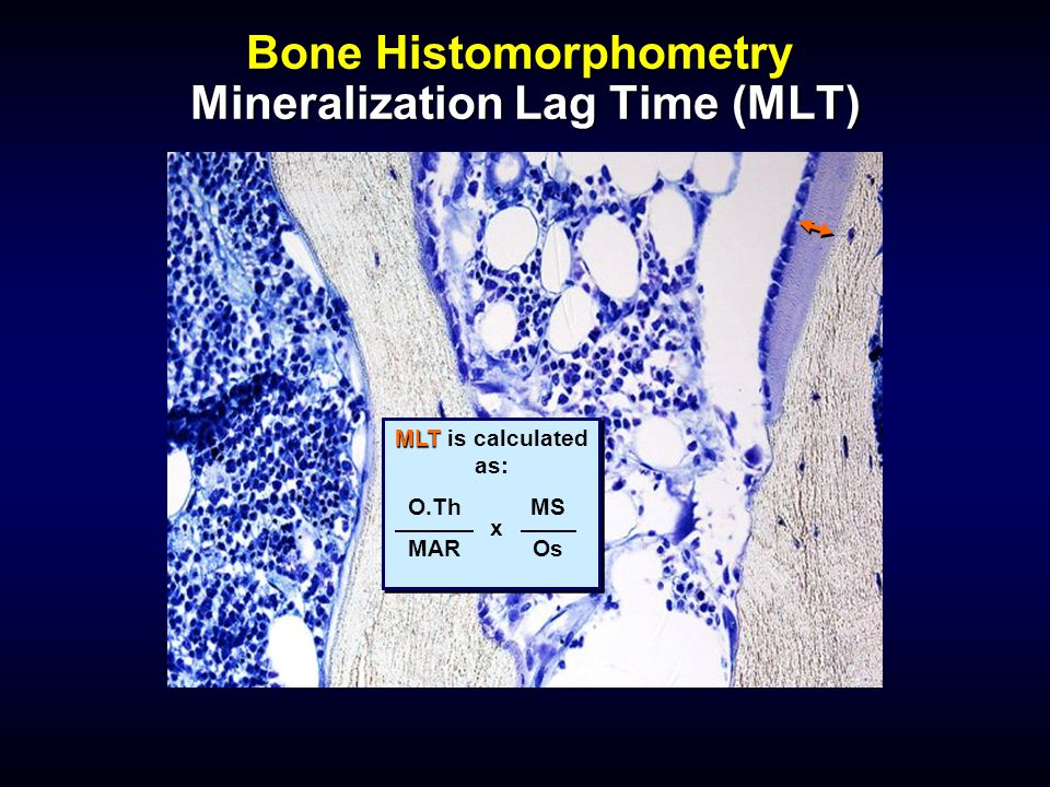 Bone Histomorphometry Mineralization Lag Time (MLT)