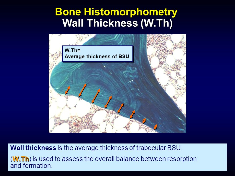 Bone Histomorphometry Wall Thickness (W.Th)