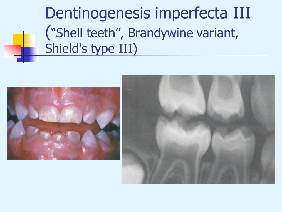 Dentinogenesis imperfecta III ( Shell teeth , Brandywine variant, Shield s type III)