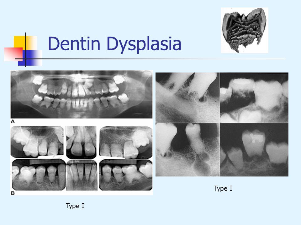 Dentin Dysplasia Type I Type I