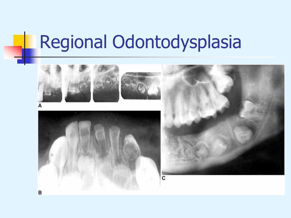 Regional Odontodysplasia