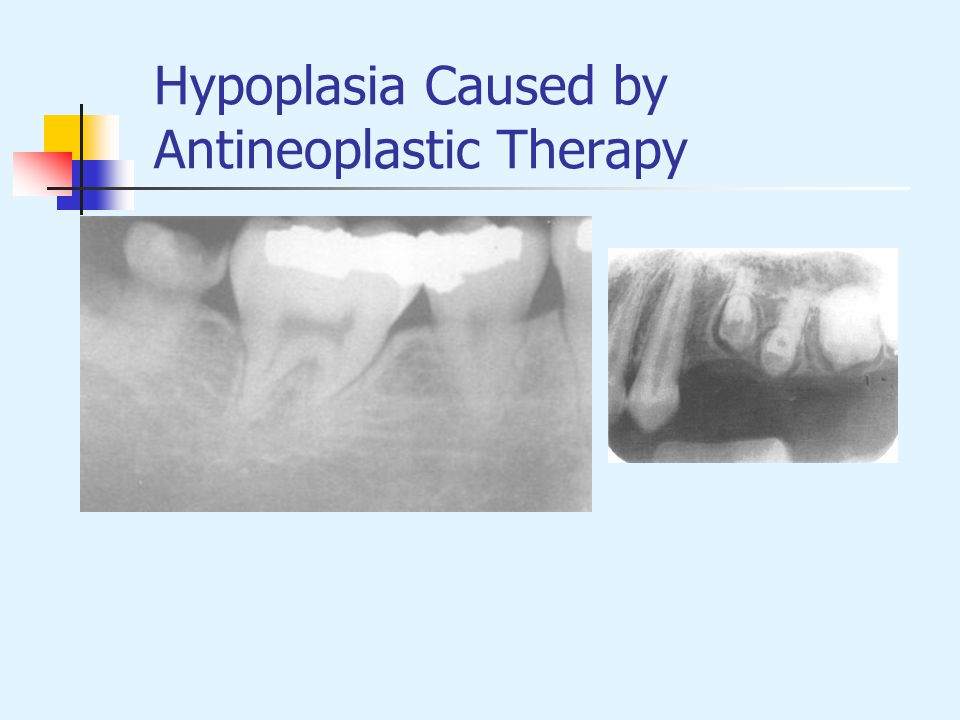 Hypoplasia Caused by Antineoplastic Therapy