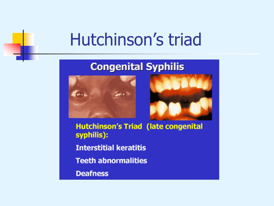 Hutchinson's triad