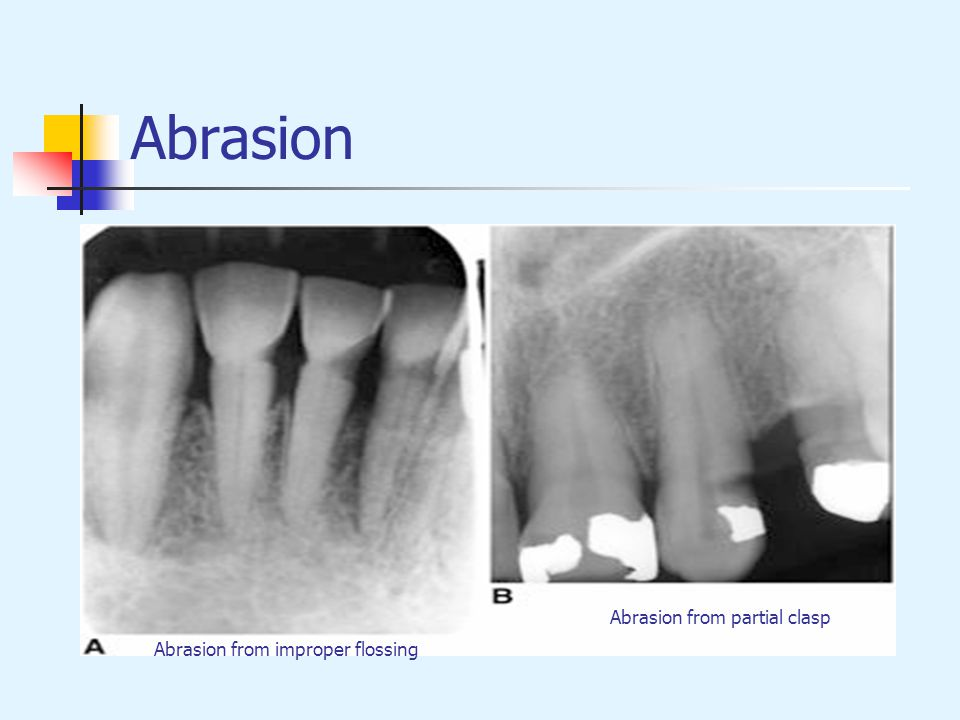 Abrasion Abrasion from partial clasp Abrasion from improper flossing
