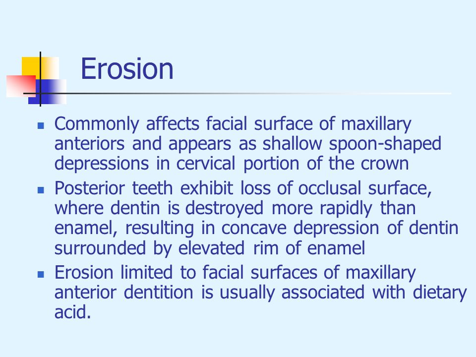 Erosion Commonly affects facial surface of maxillary anteriors and appears as shallow spoon-shaped depressions in cervical portion of the crown.