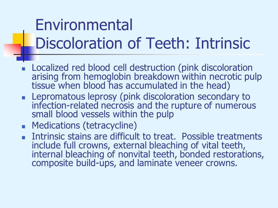 Environmental Discoloration of Teeth: Intrinsic