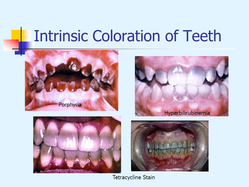 Intrinsic Coloration of Teeth