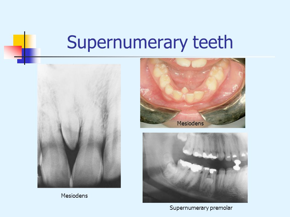 Supernumerary teeth Mesiodens Mesiodens Supernumerary premolar