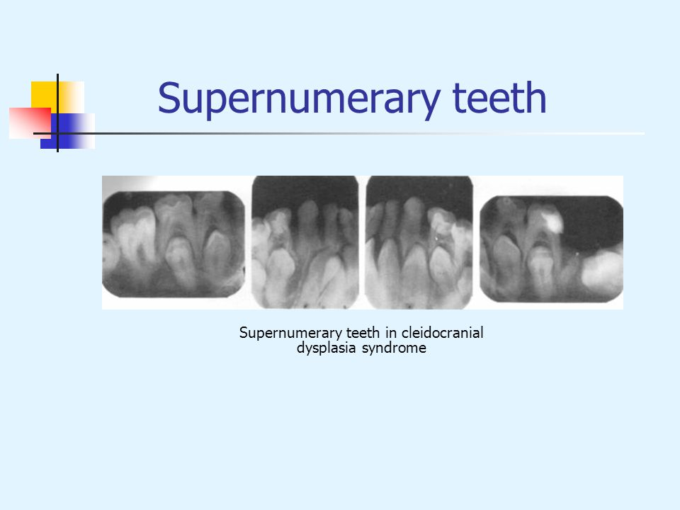 Supernumerary teeth in cleidocranial
