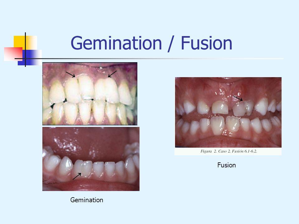 Gemination / Fusion → → → → Fusion → Gemination