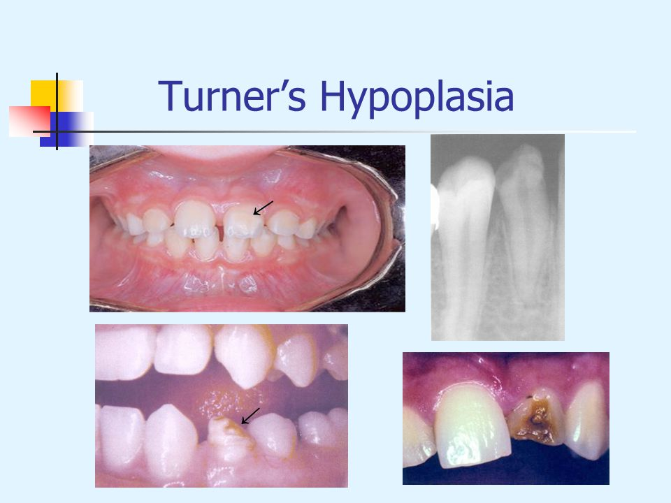 Turner's Hypoplasia → →