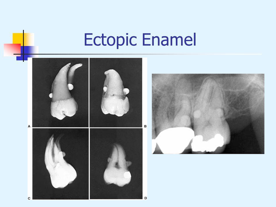 Ectopic Enamel