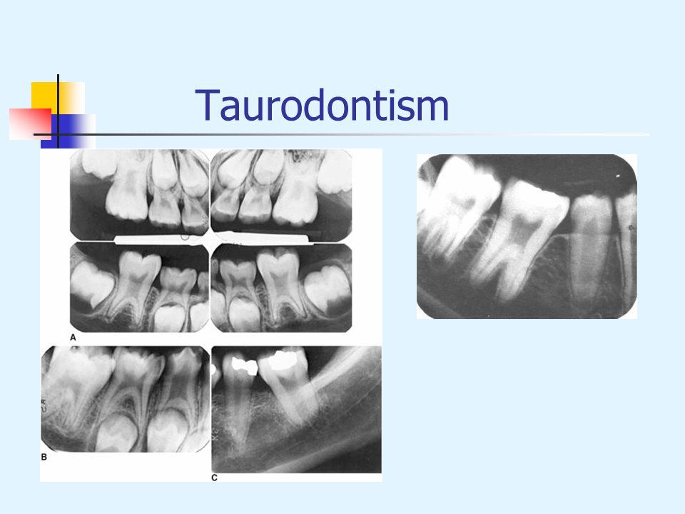 Taurodontism