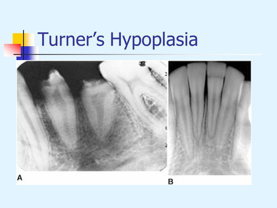 Turner's Hypoplasia
