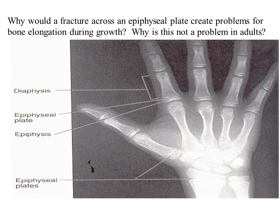 Why would a fracture across an epiphyseal plate create problems for bone elongation during growth.
