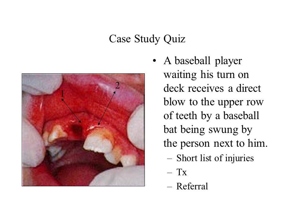 Case Study Quiz