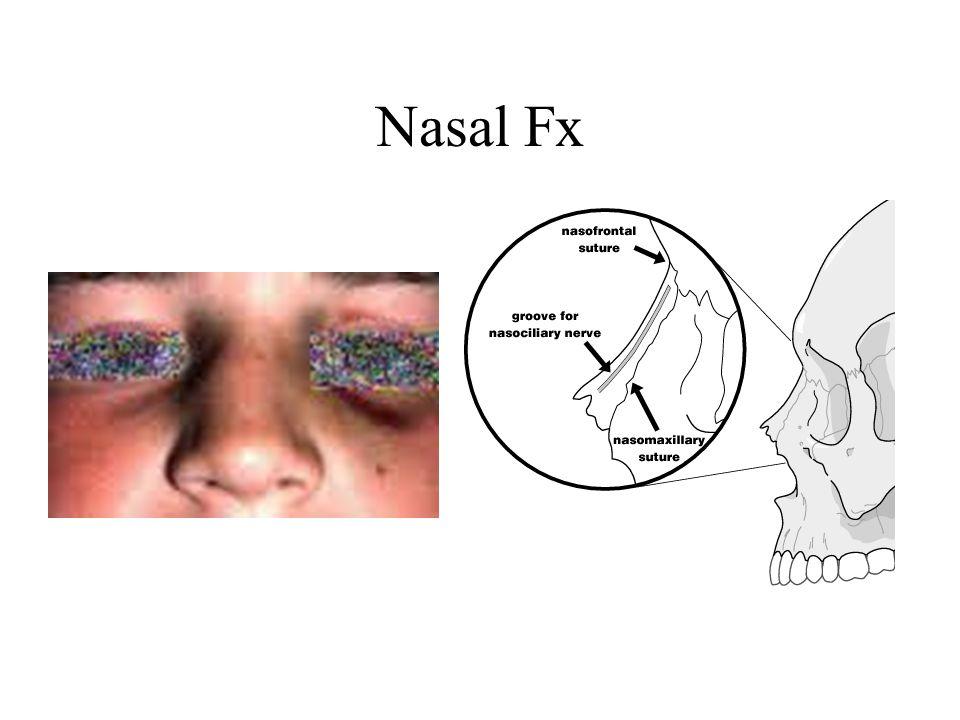 Nasal Fx