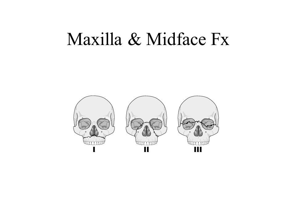 Maxilla & Midface Fx
