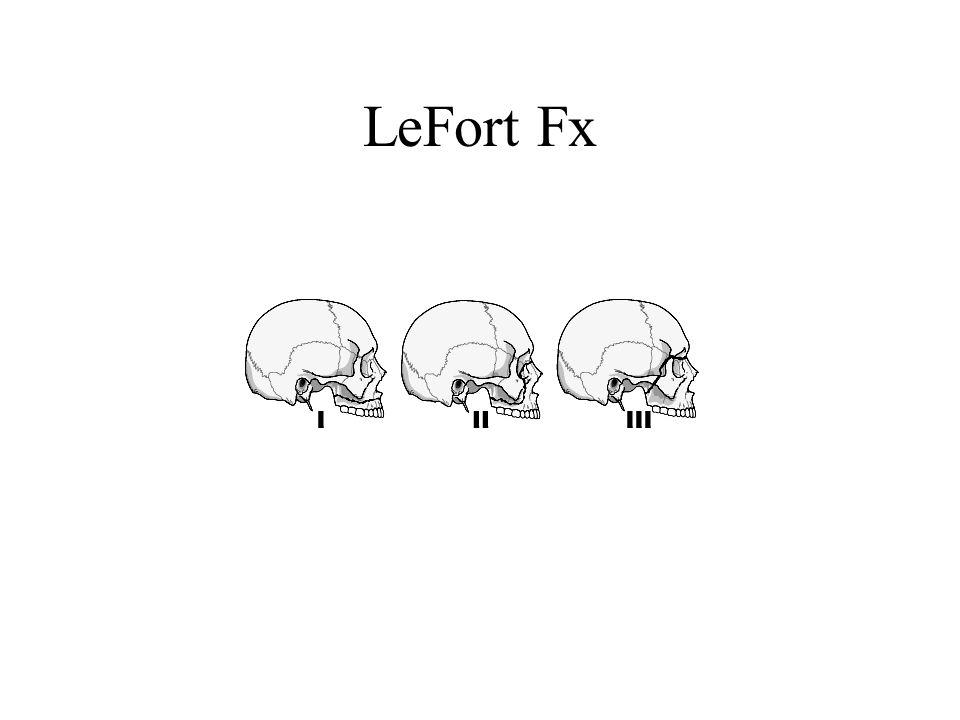 LeFort Fx