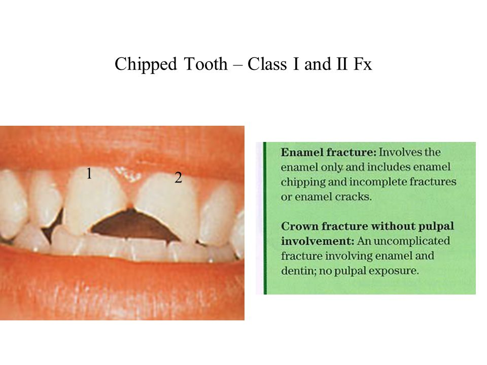 Chipped Tooth – Class I and II Fx