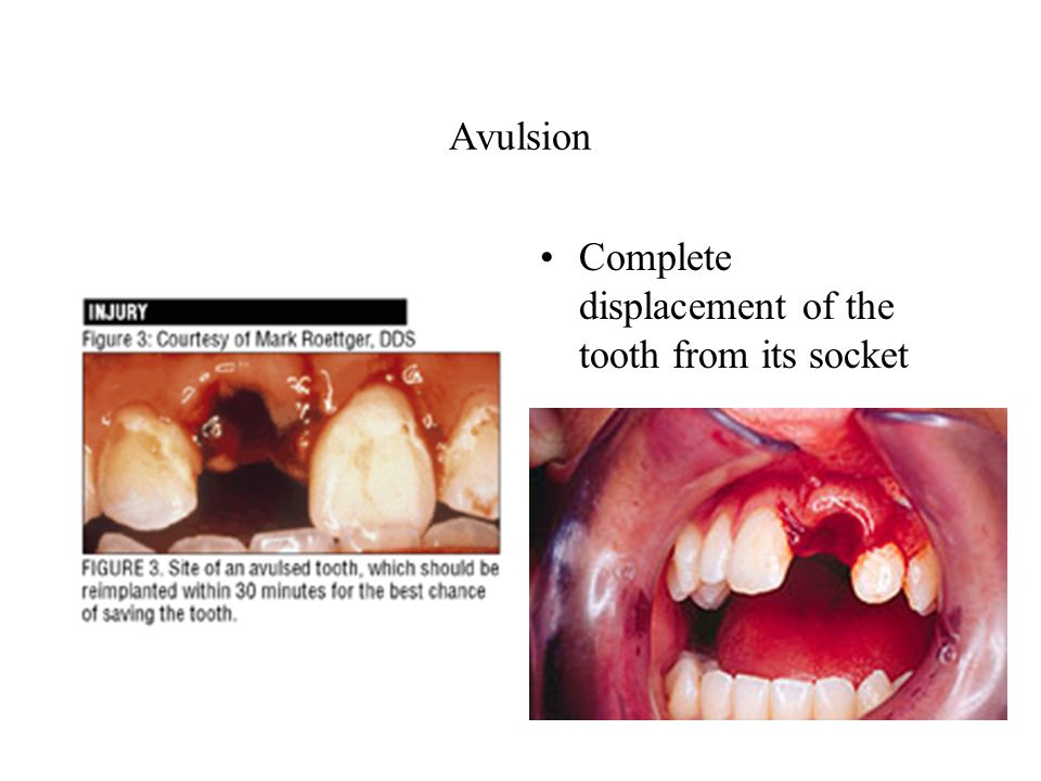Avulsion Complete displacement of the tooth from its socket