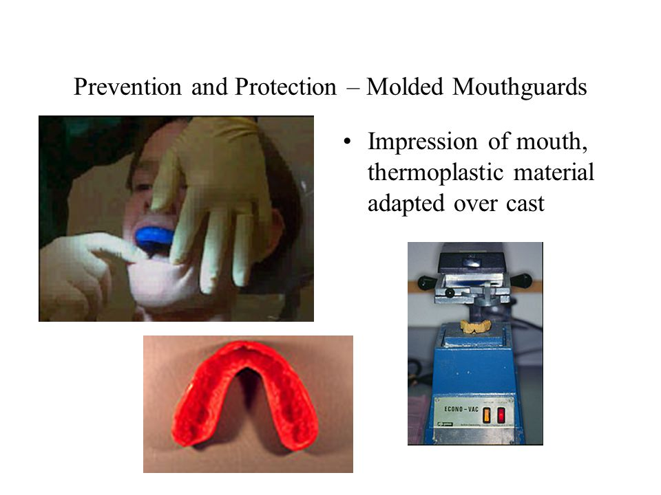Prevention and Protection – Molded Mouthguards