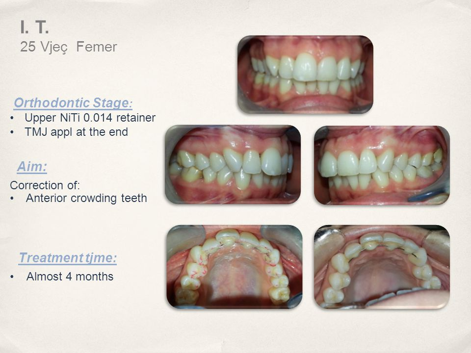 I. T. 25 Vjeç Femer Orthodontic Stage: Aim: Treatment tjme:
