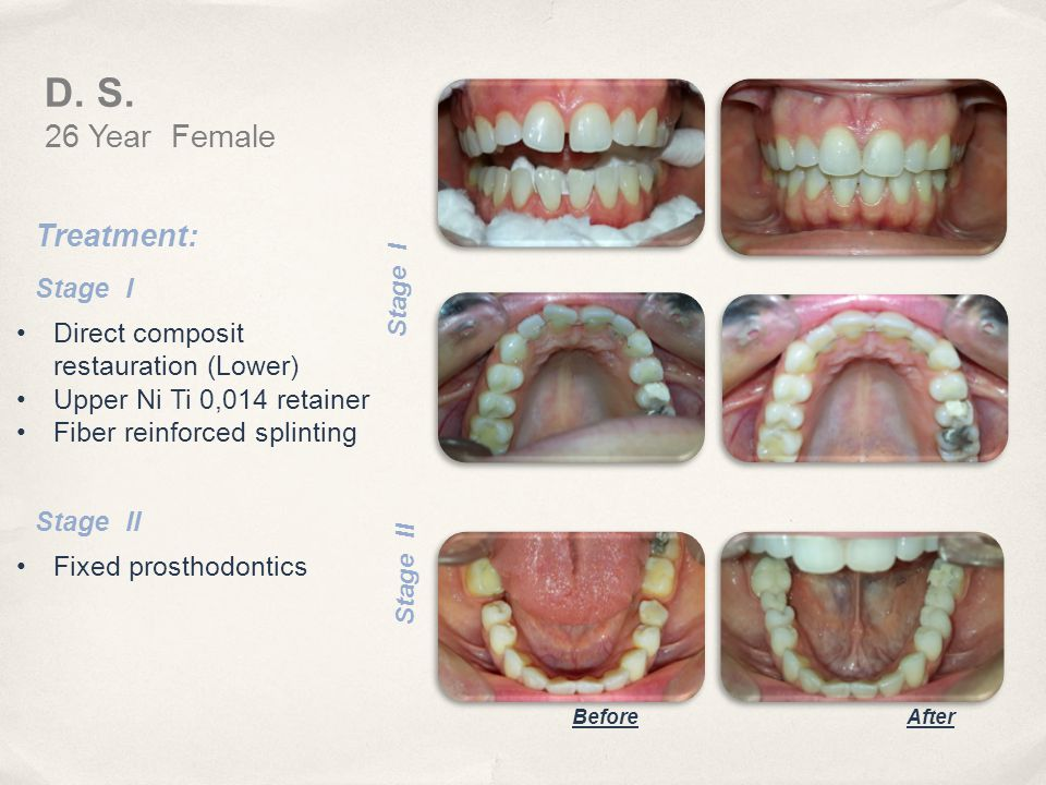 D. S. 26 Year Female Treatment: Stage I